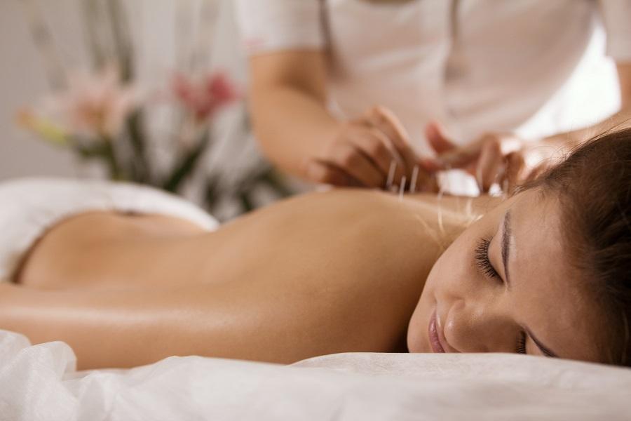 Akupunktur steigert Fruchtbarkeit