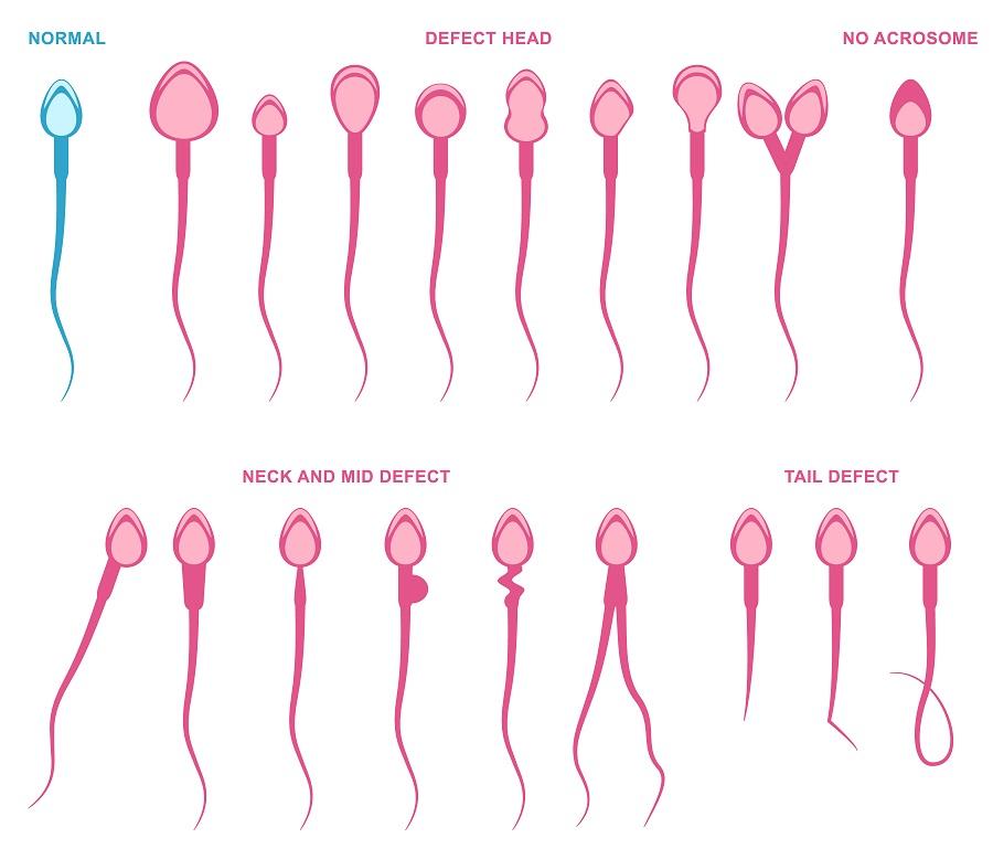 Kinderwunsch Spermienqualität Und Fruchtbarkeit Natürlich: Der Kinderwunsch Beim Mann